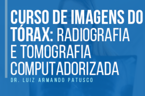 imagens do torax radio tomo 1 300x198 - Curso de imagens do tórax